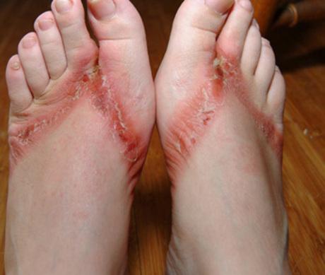 Chinese Flip Flop Slaves Feet