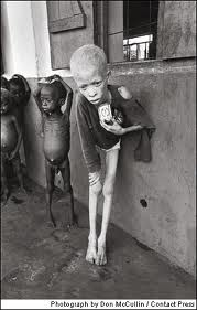 Starvation is an engineered social disease
