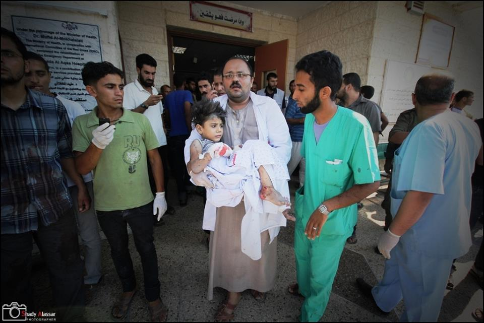 Girl being evacuated from Aqsa-Martyrs Hospital after being hit by Israel tanks, On July 22, 2014, on Gaza, Palestine (photo/Shady Alassar)