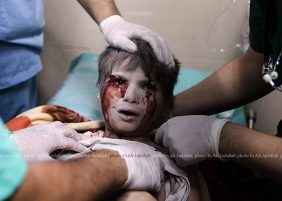 Palestinian Boy at Al-Shifa hospital received attention brought injured after Israel bombed his home