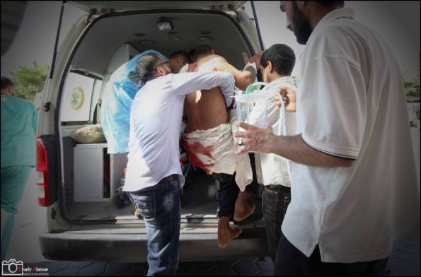 Volunteers helping a patient to an ambulance after the hospital was hit by Israel tanks